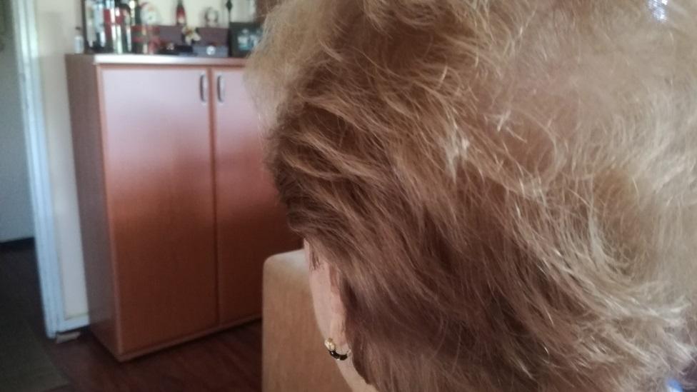 """Korona virus i opadanje kose: """"Samo da ne oćelavim i ne nosim periku"""""""
